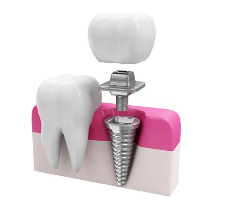 Dental Implants in Calgary